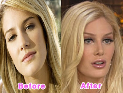 before and after of heidi montag. Heidi Montag Before and after