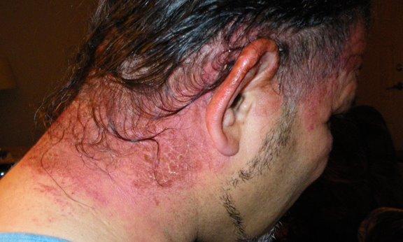 hair dye allergy health and nutrition