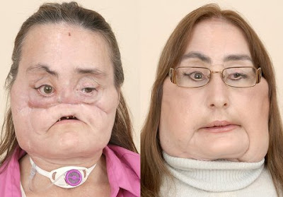 Connie Culp before and after the Face Transplant