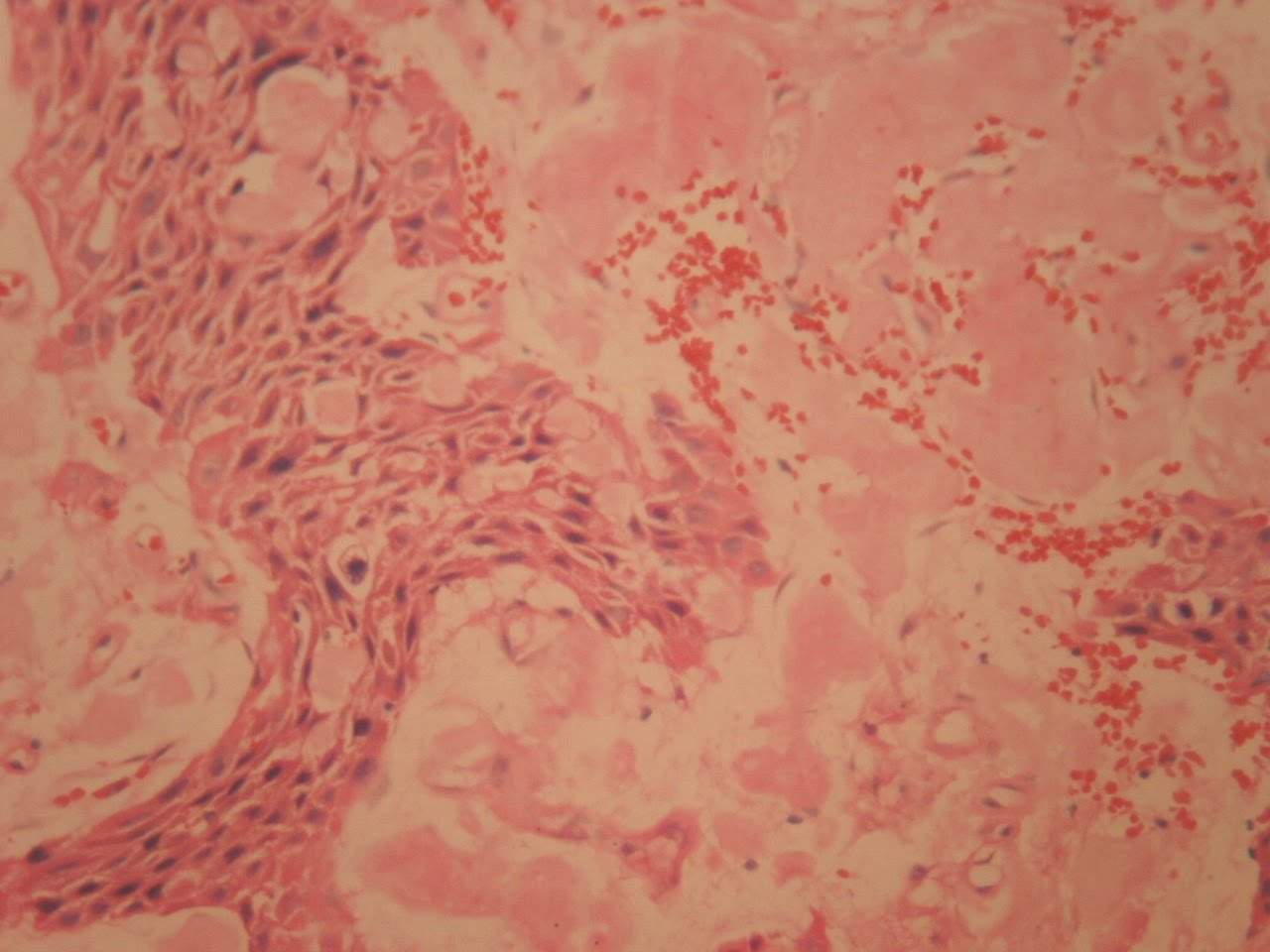 Calcifying Cystic Odontogenic Tumor http://dentistryandmedicine.blogspot.com/2010/12/calcifying-epithelial-odontogenic.html
