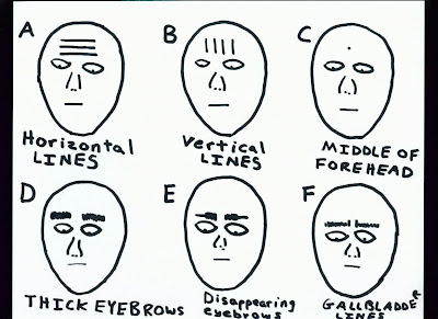 Facial Diagnosis IIII