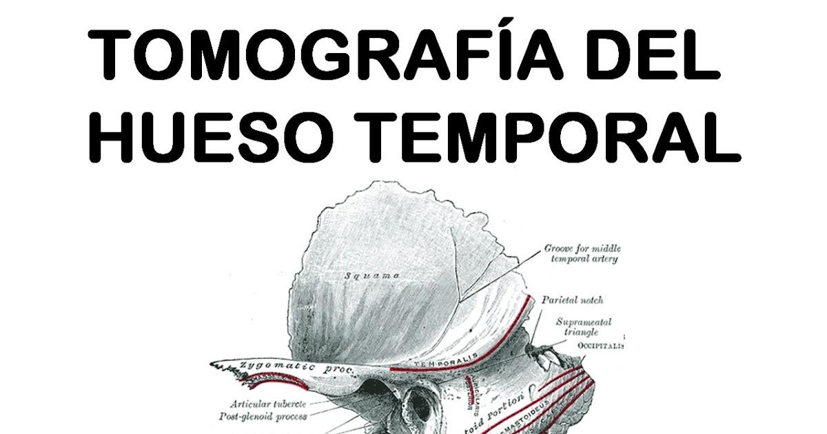 Trabajos de Investigación: TOMOGRAFÍAS DE HUESO TEMPORAL. APORTE DEL ...