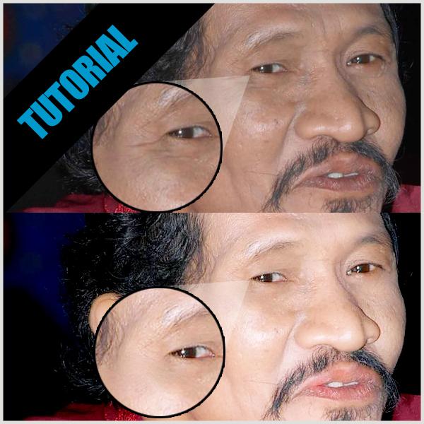 ... cara menghilangkan kerutan di wajah secara alami di bawah ini cara