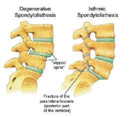 spondylothesis grades