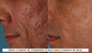 acneh Tratamento a Laser para Cicatrizes
