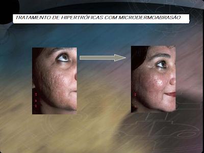 Cicatrizes Hipertróficas, Tratamentos, e causas