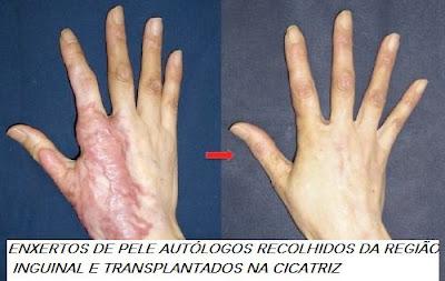 scrap12 Cicatrizes Hipertroficas, Tratamentos, e causas