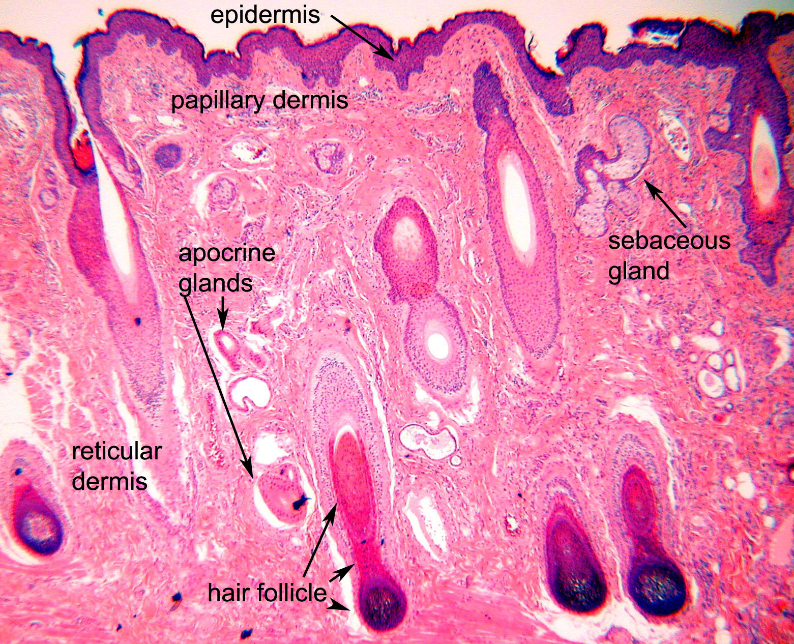 The epidermis is the surface lining in this case the
