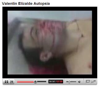 videos de la autopsia de valentin elizalde:
