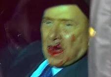 Berlusconi ferito