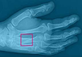 Fracture 3rd metacarpal