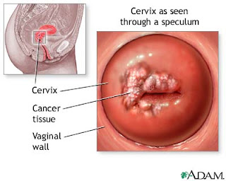 Pictures of vaginal melanoma