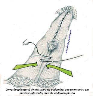sutura dos músculos retos do abdome afastados
