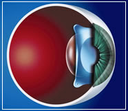 effective for thin-flap LASIK