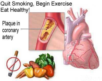 coronary heart disease statistics 2010. More than 2/3 of a coronary