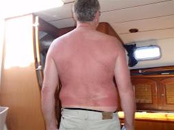 What sunburn??
