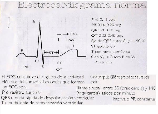 ECG- Normal