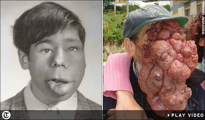 Facial tumor jose images 771