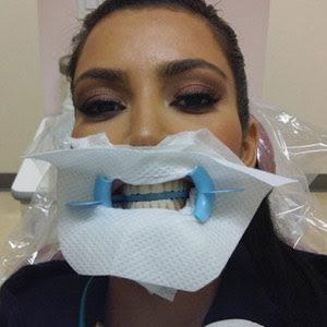 Kardashian  Pics on Autrement Plus Sexy Que Kim Kardashian Chez Le Dentiste