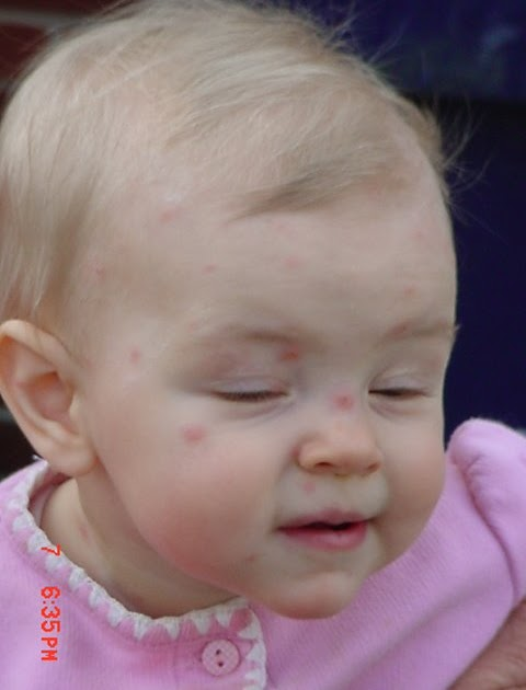 busplunge: Sophie's Got The Chicken Pox