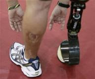 Image of Leg and Prosthesis
