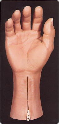 hand prosthesis