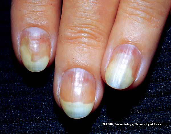 Fingernails and Thyroid Disease http://naildelour.blogspot.com/p/nail-care-tips.html