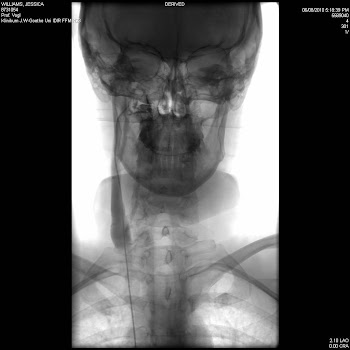 angio on right IJV