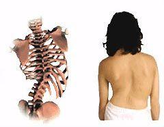 escoliose fisioterapia