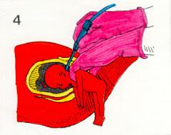 Aborto 3