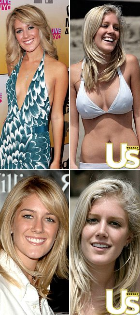 heidi montag surgery gone wrong. heidi montag after surgery