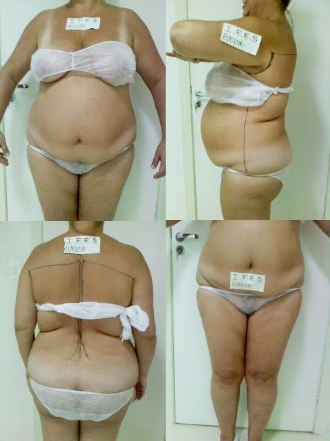 Abdominoplastia Fotos Antes E Depois Page