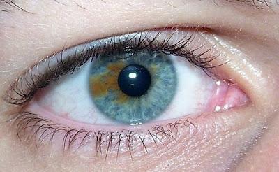Variasi dari kondisi Heterochromia ini adalah dimana seseorang memiliki variasi beberapa warna pada mata