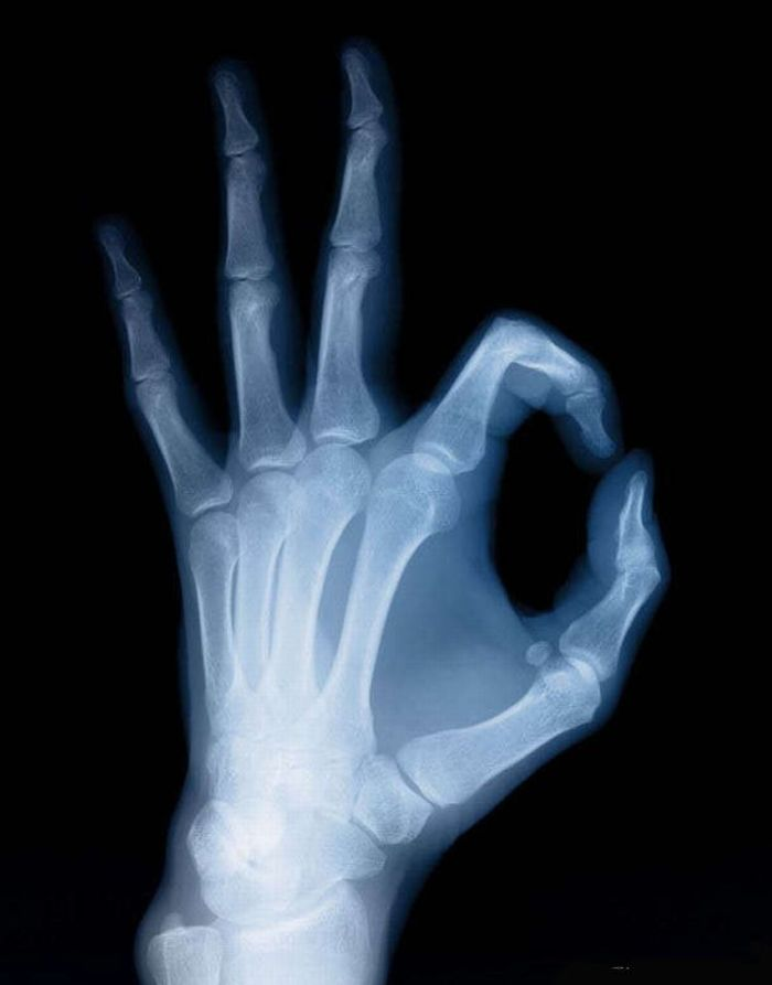 how to read a hand xray