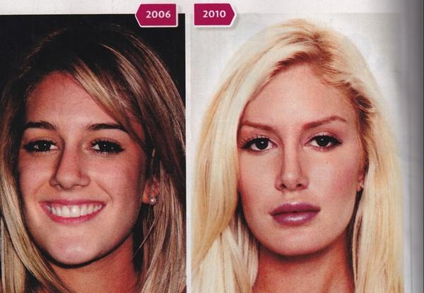 heidi montag plastic surgery cover. heidi montag plastic surgery.