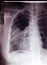 Left lung x-ray on April 08