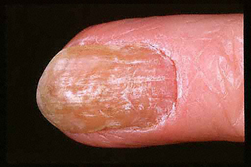 tratament ciuperca unghii picior