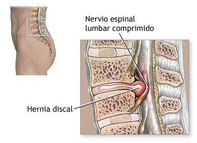 La hernia de los discos intervertebrales del departamento lumbar de la columna vertebral
