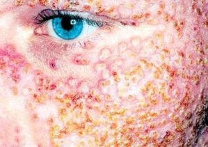 A patient with serious eczema on facial skin.