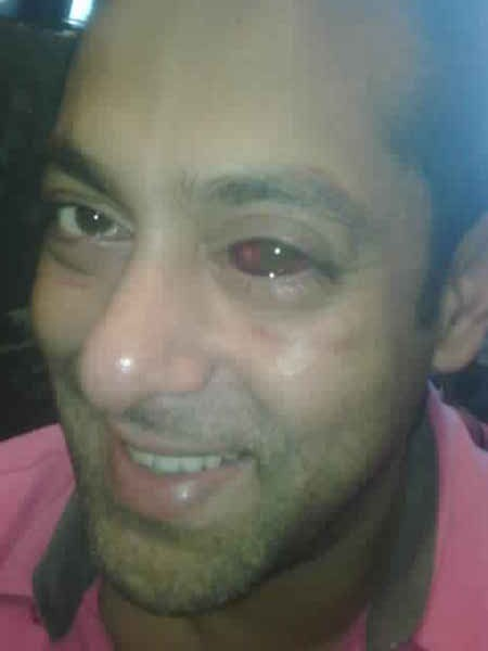 Salman Khan Red eye Photos