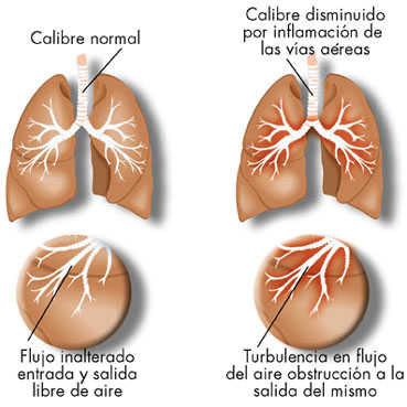 espasmo bronquial esteroide