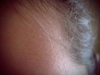 Connecticut Hair Transplants