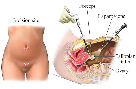 Tubal+ligation+scar+pictures