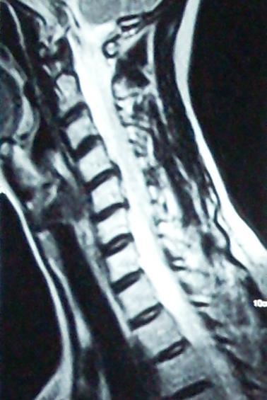 http://2.bp.blogspot.com/_Jnn5IbVA4-c/TTSMr6S_C9I/AAAAAAAAAkQ/uE8bwH2bZks/s1600/Cervical.jpg