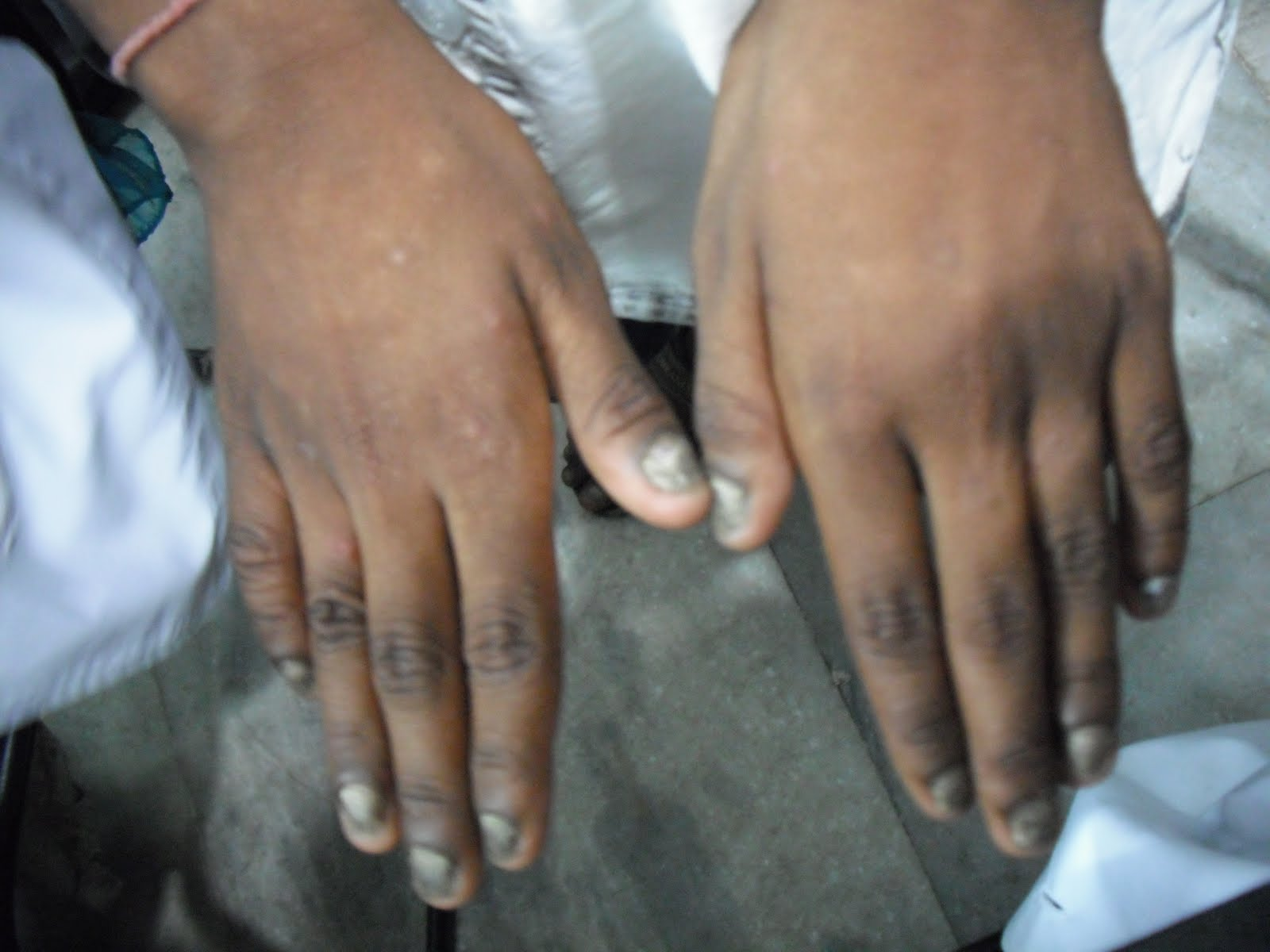 Dermacoster: 20 nail dystrophy