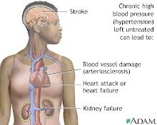 Untreated hypertension damages vessels, heart and kidneys