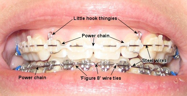 Chains braces diagram wiring diagram finally have elastics but have a question metal mouth message rh archwired com orthodontic braces parts names orthodontic elastic wear chart ccuart Choice Image