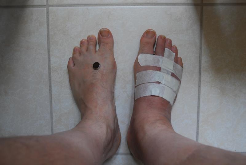 Magneet reduceert zwelling op voet
