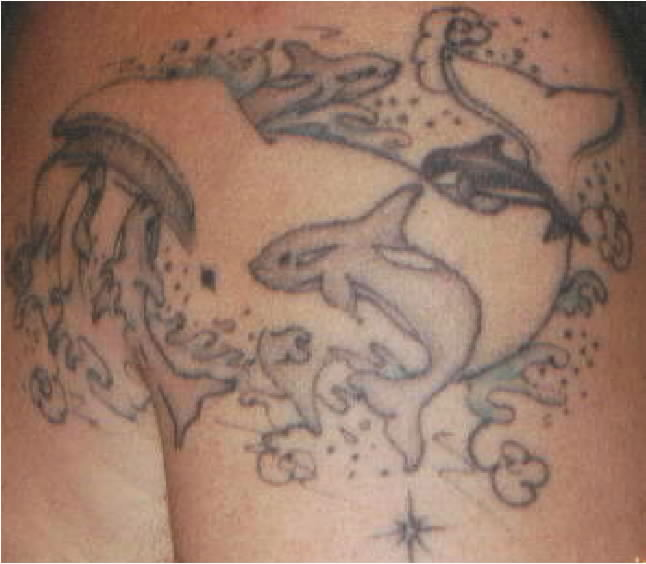 Tattoo removal creams products stories of more people for Tattoo removal products