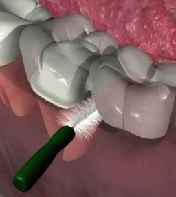 how to stop gum from bleeding after tooth fell